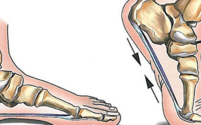 Could your foot be causing your knee pain?
